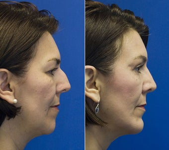 Chin Implantation with Rhinoplasty and upper lid blepharoplasty