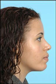 Rhinoplasty / Chin Implant