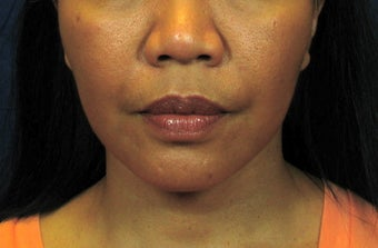 Chin Implant with Laser Facelift