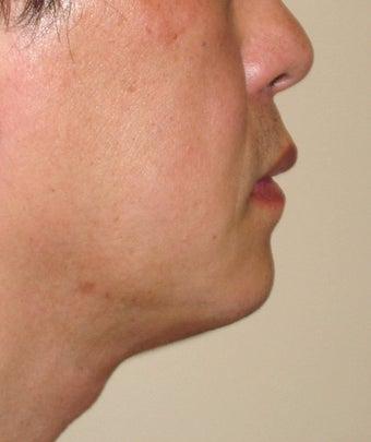 Chin Augmentation with Liposuction Neck