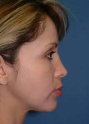 Chin Implant and Liposuction