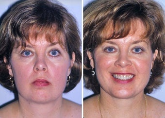 Liposuction of neck and chin augmentation