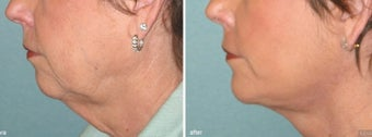 Chin Implant with Facelift