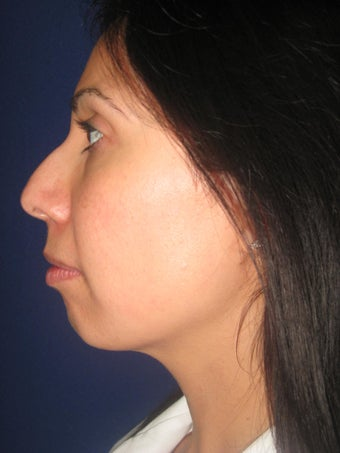Chin Augmentation (Chin Implant)