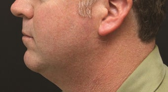 Chin Implant and Laser-Assisted Lipocontouring of Neck