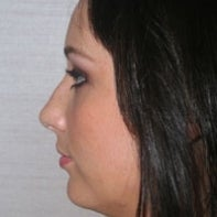 Chin Implant and Neck Liposuction
