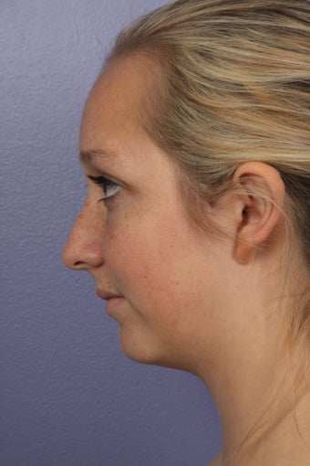 Chin Augmentation and Liposuction of the Neck