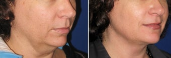 Chin / Neck Liposuction