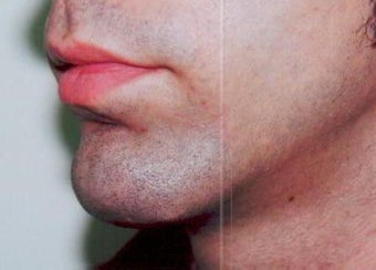 Chin augmentation using prosthesis