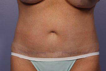CoolSculpting to Abdomen