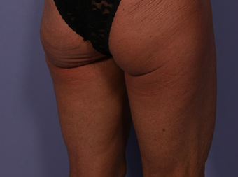CoolSculpting to Banana Roll, Upper, Posterior thighs