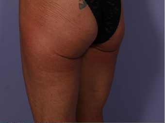 CoolSculpting to Banana Roll/ Upper, Posterior thigh