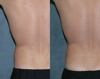 "Zeltiq for fat reduction on ""love handles"""
