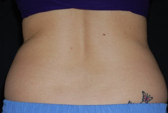 CoolSculpting/flanks