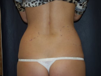 CoolSculpting to the Posterior