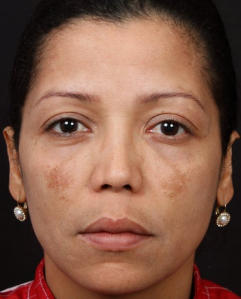 Cosmelan MD for Facial Pigmentation