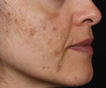 Cosmelan for Dark Spots from Acne