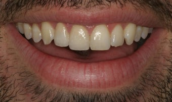 Ceramic crowns after trauma