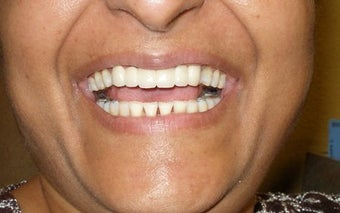Cosmetic Dentistry Fixed Prosthesis