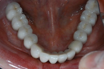 Implants to support a fixed bridge for a patient with all teeth missing