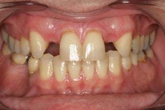 Implants Replacing Two Front Teeth
