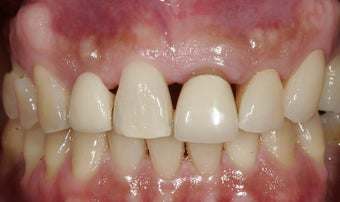 Dental implants in the smile zone