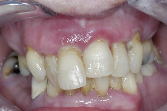 Dental implants supporting a full upper denture