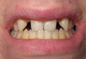 Dental Implants to Replace Missing Teeth