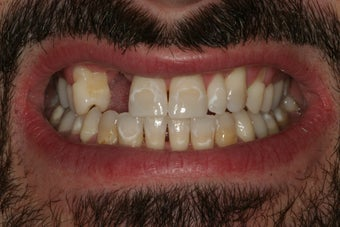 Smile Makeover: Veneers and a Bridge