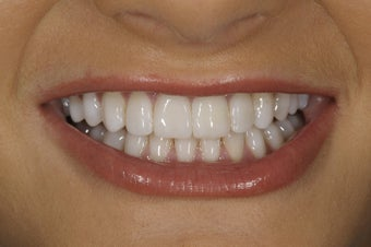 Resin bonding smile makeover on a teenager.