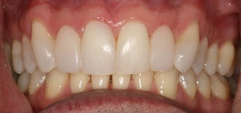 Cosmetic bonding and gum lift