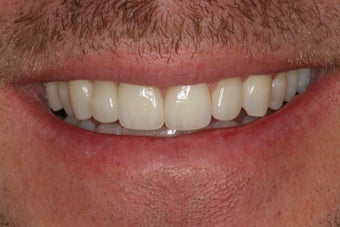 Tooth replacement in the smile