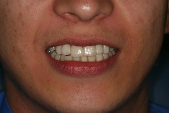Anterior all ceramic crowns