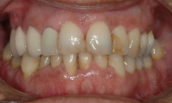 Full Porcelain Crowns