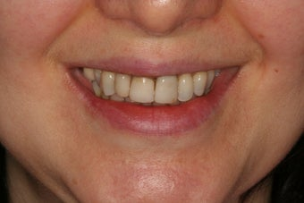 Anterior all-ceramic crowns and implant crowns