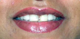 Ceramic Crowns for midline gap