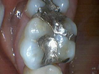 Silver Fillings Replaced with Porcelain