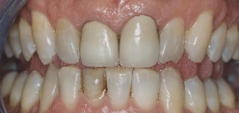 Dental Crowns and Teeth Whitening
