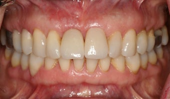 Anterior dental implant