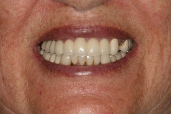 Dental implants and PFM bridge