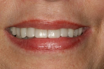 Dental implants, bone grafts, all porcelain crowns