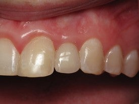Dental Implant for Missing Lateral Incisor