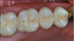 Dental Implants For Missing Back Teeth
