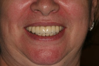 Full Mouth reconstruction, Smile makeover