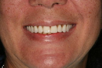 Dental implants, implant overdenture
