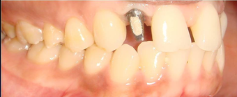 Replacing congenitally missing tooth with Dental Implant