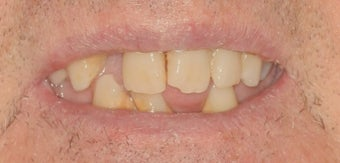 Dental implants, all porcelain restorations
