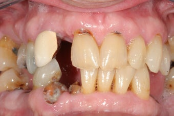 Dental implants, all porcelain crowns