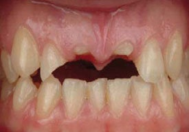 Dental Implants For Missing Front Teeth