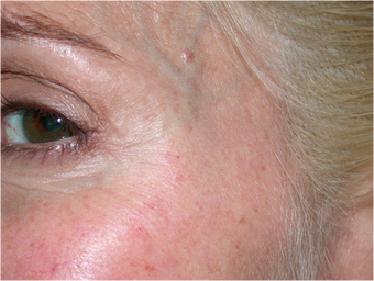 Improvement of crow's feet wrinkles with Dysport